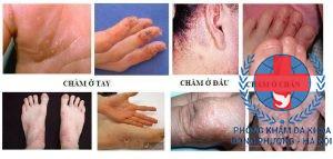 Bệnh chàm và cách chữa bệnh chàm