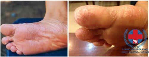 Bệnh chàm ở chân