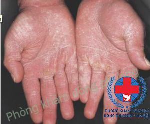 bệnh nấm da tay
