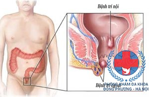 bệnh trĩ ngoại