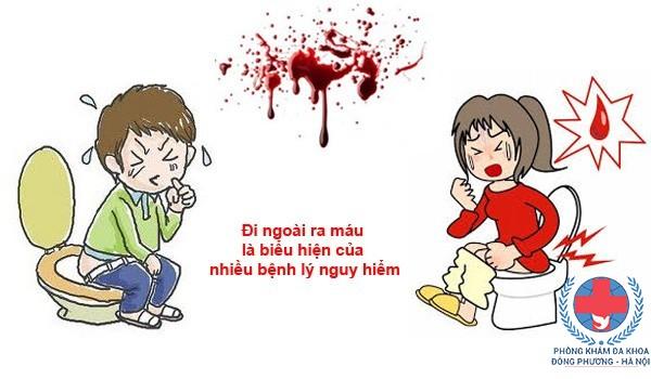 Nguyên nhân gây đại tiện ra máu tươi