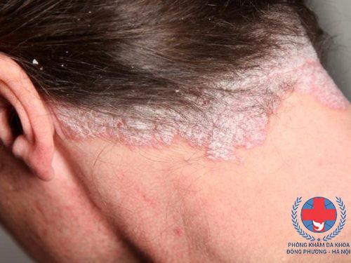 bệnh vảy nến da đầu