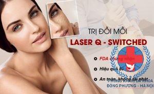 Cách trị đồi mồi bằng laser q