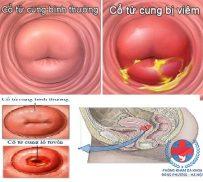 Cách chữa viêm cổ tử cung ở phụ nữ