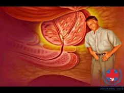 Phì đại tuyến tiền liệt và cách chữa phì đại tuyến tiền liệt