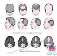 Rụng tóc từng mảng và cách chữa rụng tóc từng mảng
