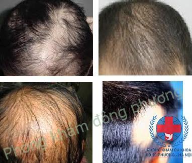 Rụng tóc từng vùng