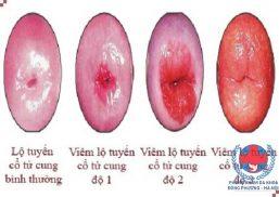 Viêm lộ tuyến tử cung và cách chữa viêm lộ tuyến tử cung