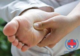 Cước chân và cách chữa cước chân mùa đông