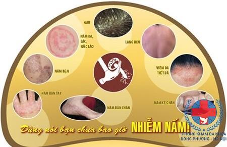 Các bệnh nấm da thường gặp và cách chữa bệnh nấm da