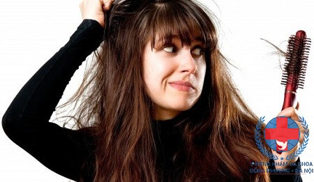 Rụng tóc hình vành khăn và cách chữa rụng tóc tuổi dậy thì