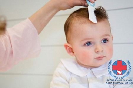 Rụng tóc ở trẻ sơ sinh là biểu hiện của bệnh gì?