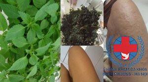 Tổng hợp các cách chữa mề đay bằng rau kinh giới