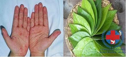 Bài thuốc chữa ghẻ từ lá trầu không