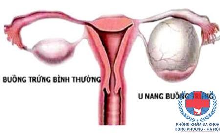 Chữa u nang buồng trứng bằng thuốc nam có hiệu quả không?