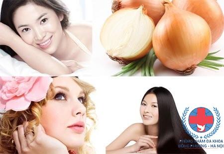 Phương pháp chữa rụng tóc bằng hành tây hiệu quả