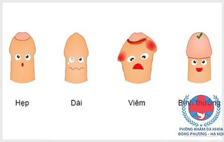 Các bệnh bao quy đầu ở nam giới