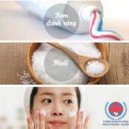 Cách trị mụn cám bằng kem đánh răng