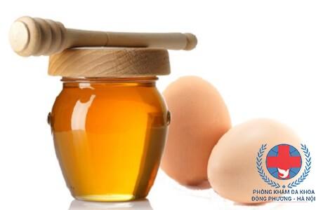 Cách trị mụn cám bằng trứng gà mật ong