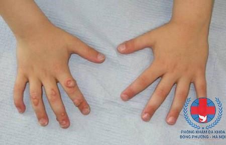 Bệnh mụn cơm ở trẻ em có lây không?