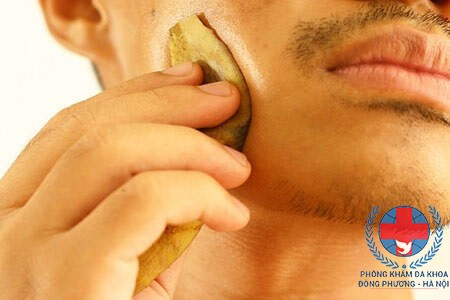 Cách trị mụn cơm bằng vỏ chuối hiệu quả