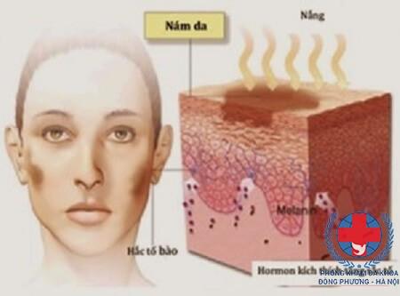 Tại sao bị nám da ở phụ nữ
