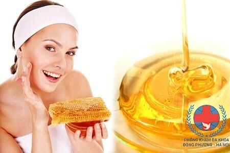 Cách trị nám da bằng mật ong hiệu quả