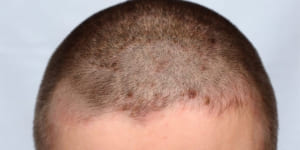 Mụn cóc ở da đầu vì sao xuất hiện? điều trị như thế nào?