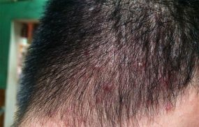 Nguyên nhân gây bệnh ngứa da đầu và cách điều trị hiệu quả