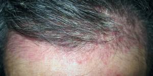 Hoang mang khi bị dị ứng da đầu – phải làm sao?