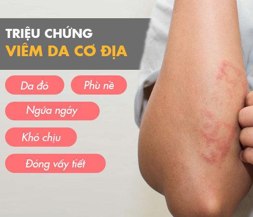 Trieu Chung Viem Da Co Dia
