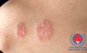 Đi tìm lời giải đáp: nấm da có lây không?