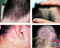 Cách chữa nấm da đầu và nấm da mặt tận gốc