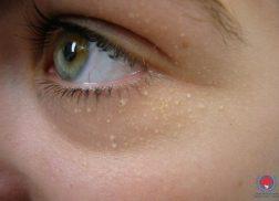 Làm sao để trị mụn cóc phẳng trên mặt