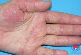Nhận biết viêm da dị ứng ở tay bằng cách nào?