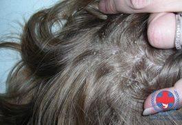 Nấm da đầu | Biểu hiện nấm da đầu nhất định bạn phải biết
