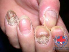 Nấm móng | Cách điều trị nấm móng tận gốc