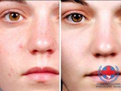 Chia sẻ từ chuyên gia về dị ứng da mặt và cách điều trị