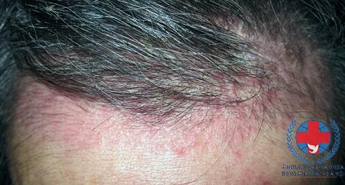 Chia sẻ về bệnh nấm da đầu và cách chữa trị căn bệnh này