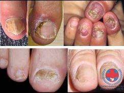 Nấm mòng là gì? Nguyên nhân, biểu hiện bệnh nấm móng?