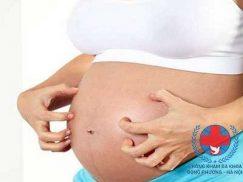 Viêm da cơ địa khi mang thai – những điều cần lưu ý
