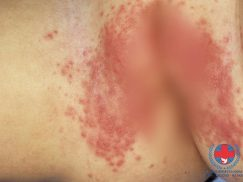 Nguyên nhân và cách điều trị viêm da dị ứng ở nách?