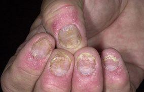 Nấm móng có chữa được không – chuyên gia nói gì?