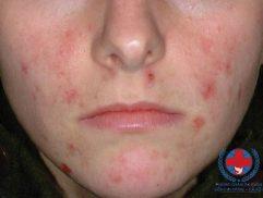 Cách giảm dị ứng da mặt không thể bỏ qua