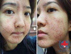 Bị dị ứng da mặt nổi mụn phải làm sao?