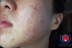 Hiện tượng dị ứng da mặt do đâu mà có?