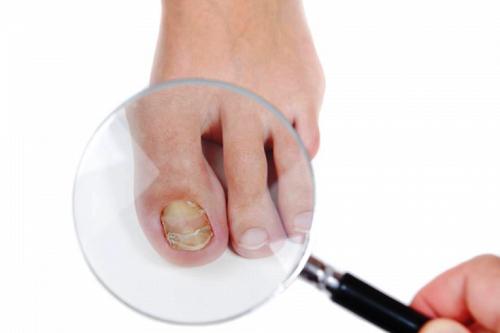 điều trị nấm móng bằng thuốc hiệu quả nhất
