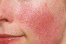 Điểm mặt nguyên nhân bị dị ứng da và biểu hiện dị ứng da