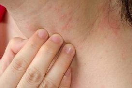 Dị ứng da ngứa gây khó chịu – phải làm sao?