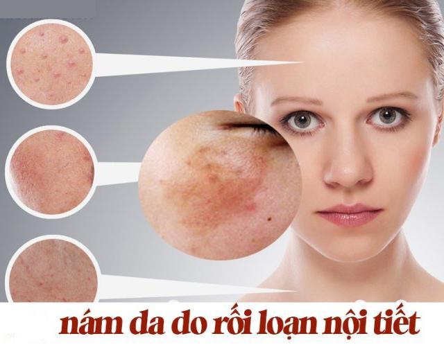 nam-da-do-roi-loan-noi-tiet
